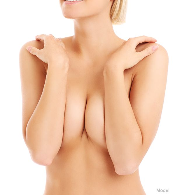 breast revision model