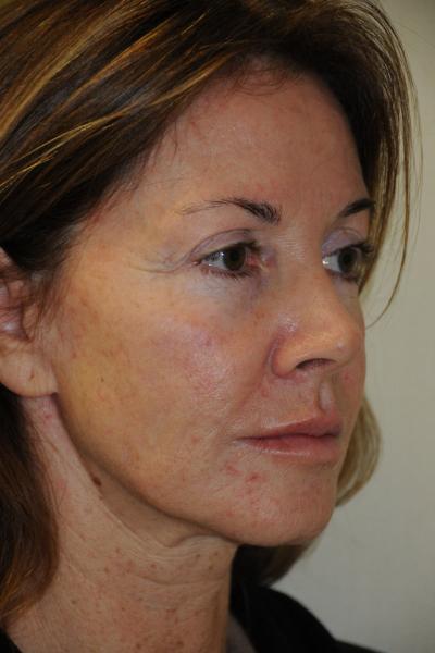 Facelift Patient 01 Before