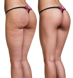 Model Before and After for smooth skin
