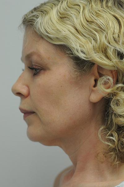 Facelift Patient 06 Before - 4