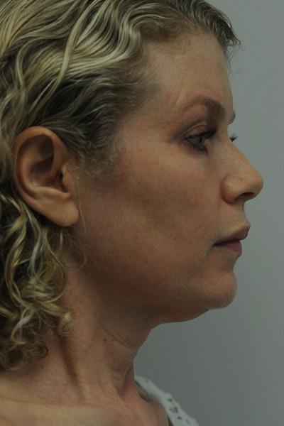 Facelift Patient 06 Before - 3