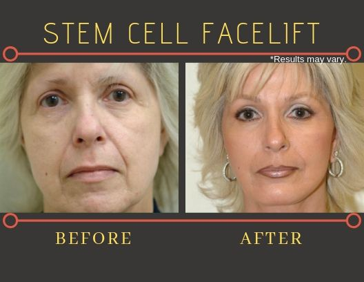 Before and after image showing results of a female patient's stem cell facelift surgery.