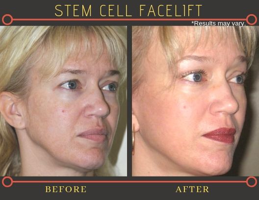 Before and after photos of a female patient who underwent vertical facelift surgery in Beverly Hills, CA.
