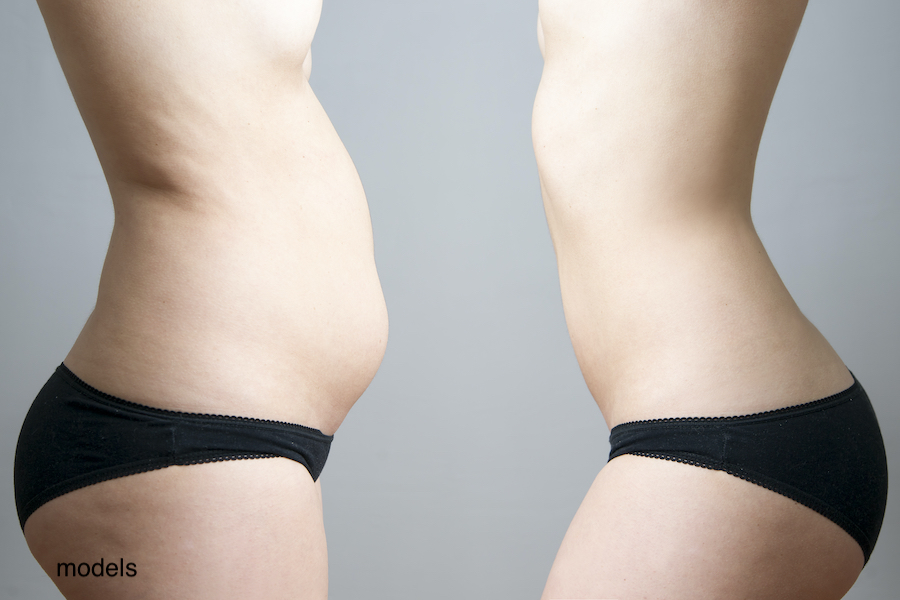 Belly fat is stubborn. Even after diet and exercise, many women need to turn to body contouring procedures like a tummy tuck or liposuction to get rid of it.
