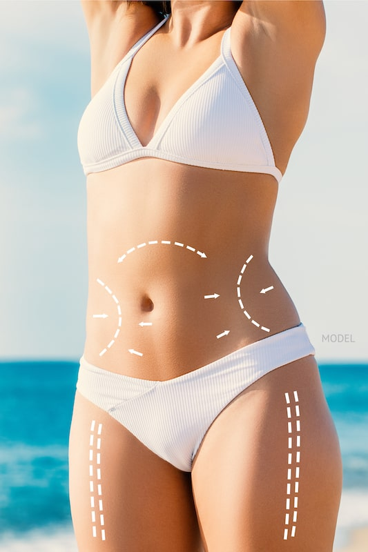 Woman standing on a beach, arms stretched up, with body contouring lines drawn on abs and thighs.